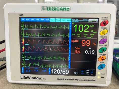ANESTHESIA AND MONITORING
